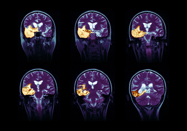 Различные виды опухолей головного мозга