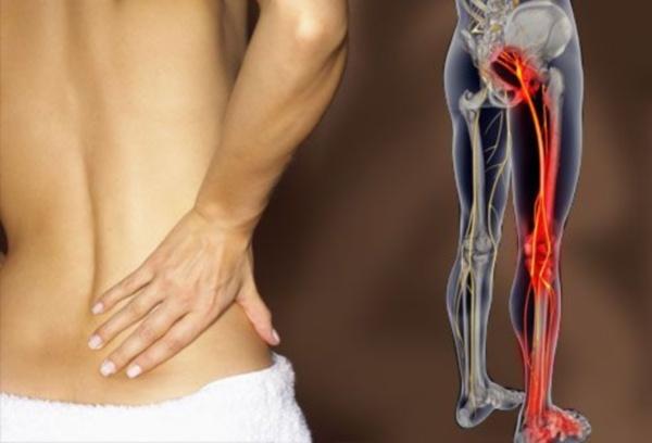 Боль в ноге и пояснице