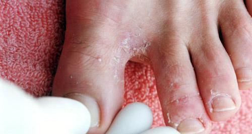Скопление грибков под пальцами