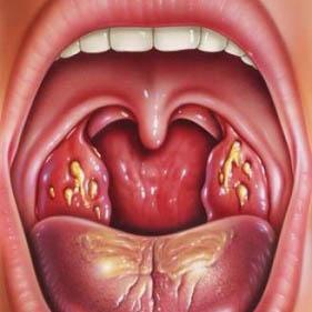 хронический тонзиллит запах изо рта чем