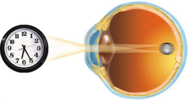 Давление плохое зрение