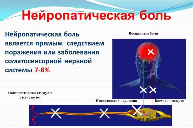 нейропатическая боль в голове