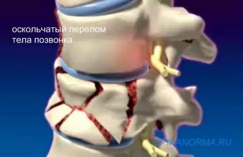 Оскольчатый перелом тела позвонка