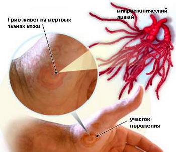 Лечение женского бесплодия - причины, стоимость