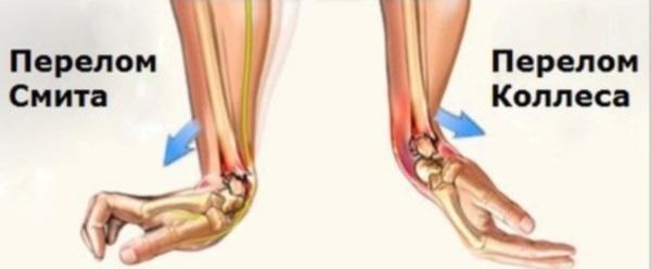 Два вида перелома