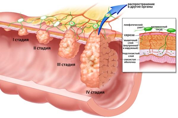 Стадии раковых опухолей