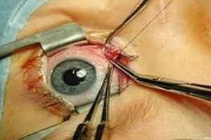 Операция на глазе