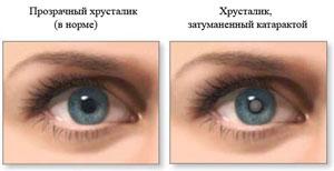 Сравнение здорового глаза и катаракты