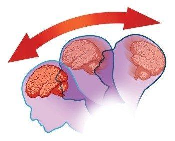 Рисунок сотрясения мозга
