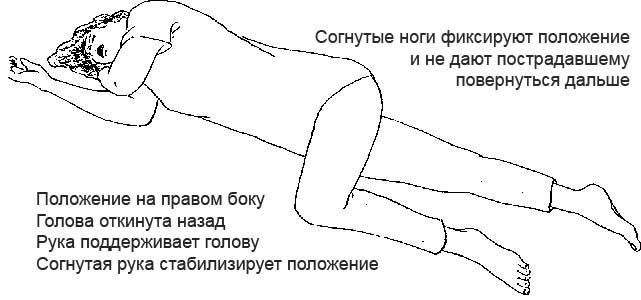 Схема оказания первой помощи при сотрясении