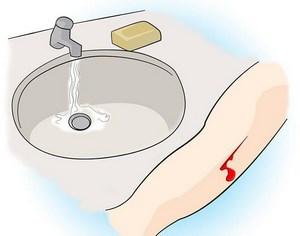 Кран с водой и мылом и порез на руке