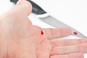 Мелкий порез на руке и рядом нож