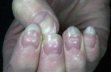 Волнистые ногти на больших пальцах рук: причины