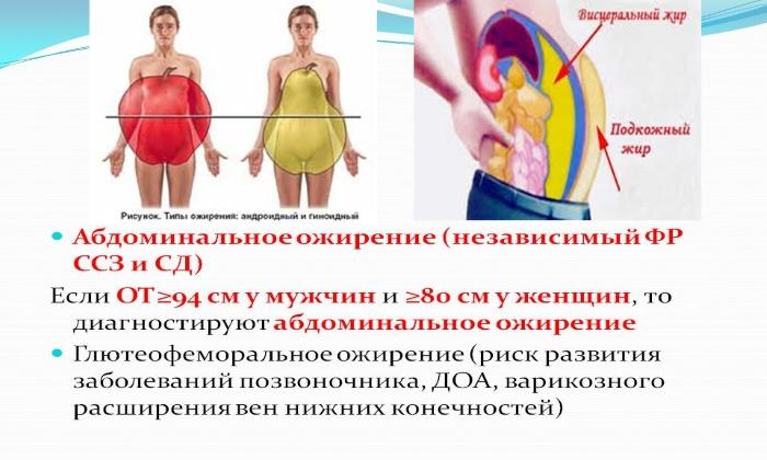 Что такое абдоминальное ожирение у женщин и мужчин: причины образования жира, степени, лечение, фото