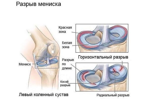 Виды разрывов мениска коленного сустава