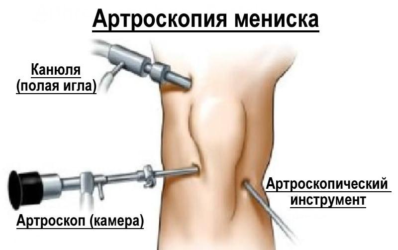 В СпортКлинике артроскопию мениска выполняют лучшие врачи травматологи-хирурги России.