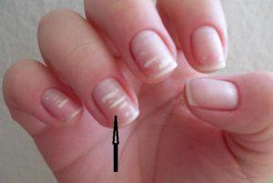 Белые полоски на ногтях – что означают продольные, вертикальные полосы на ногтях?