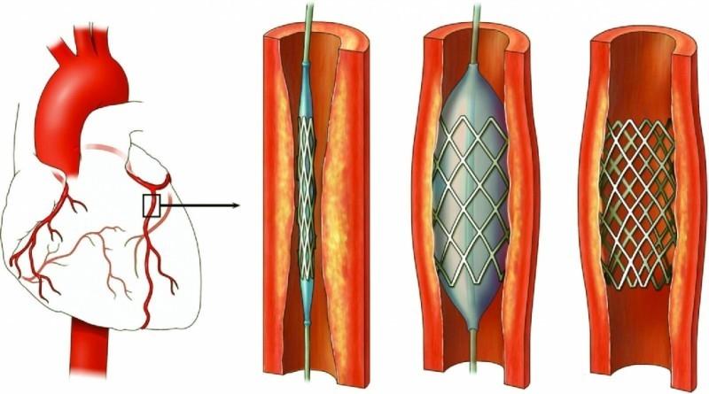 Как распознать инфаркт миокарда и оказать первую помощь?