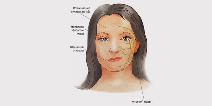Невралгия тройничного нерва причины, симптомы и лечение