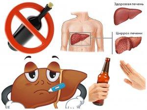 Алкогольный гепатит печени