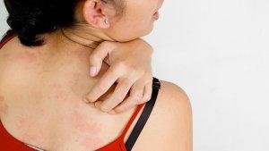 Аллергия – повышенная чувствительность организма на некоторые вещества