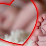 Врожденные аномалии: вывих бедра, косолапость, кривошея у новорожденных детей