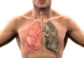 Влияние курения на образование рака легких