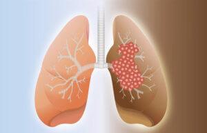 Симптомы и гистологические формы рака легких