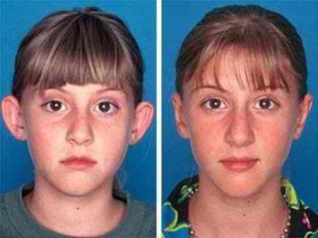 Фото До и После пластики ушей. Была произведена пластика надхрящницы ушной раковины