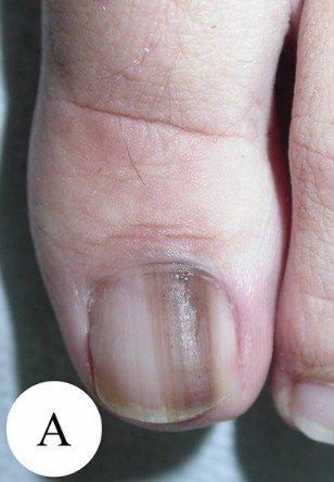 Подногтевая меланома I ст., 0,2 мм по Бреслоу