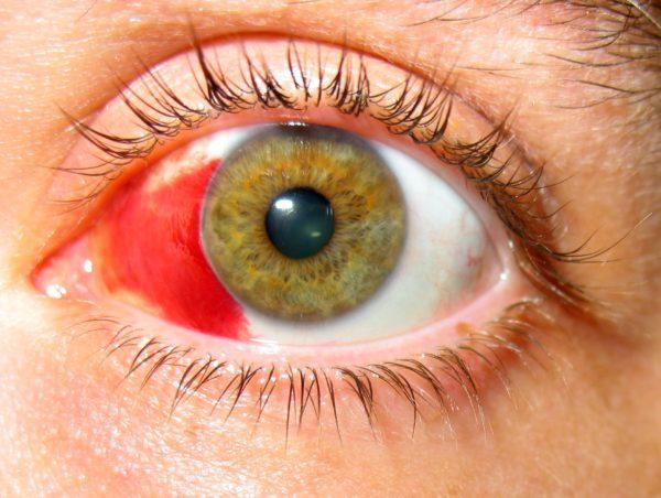 кровь в подконъюнктивальном пространстве при травме