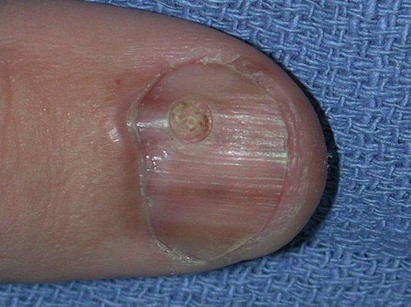 Подногтевая меланома большого пальца c 4-м уровнем инвазии по Кларку, толщина по Бреслоу не указана