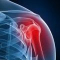 шейно плечевой остеохондроз