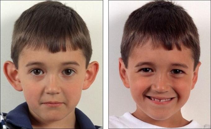 Фото До и После пластики ушей.  Была произведена пластика надхрящницы ушной раковины ребенка