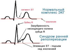 Синдром ранней реполяризации миокарда