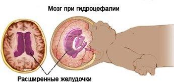 Водянка: что это за болезнь и каким образом подвергается лечению...