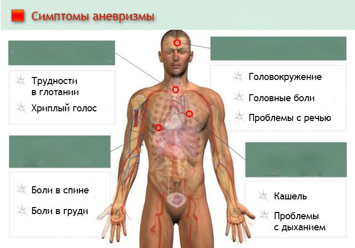 Симптомы аневризмы