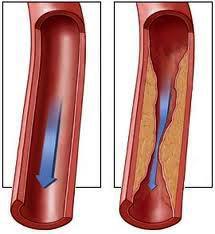 если кровь густая повышен риск тромбообразования