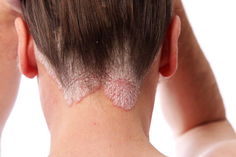 Поражение волосистой части головы