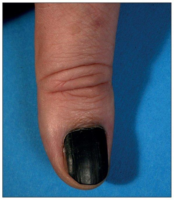 Подногтевая меланома, толщина по Бреслоу 1,5 мм