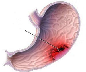 Онкология поражающая желудок