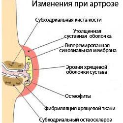 Изменения в суставе при артрозе