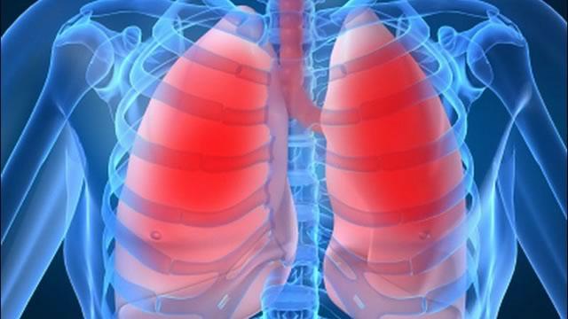 Кашель с кровью: причины, симптомы, диагностика, лечение
