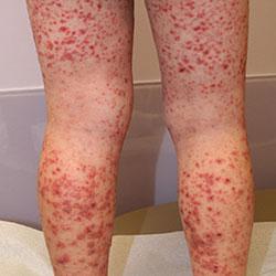 Геморрагический васкулит у детей причины симптомы лечение