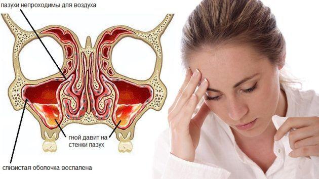 Хроническая форма гайморита
