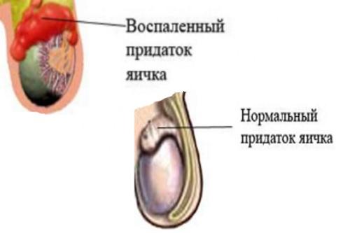 Prichiny-spermatocele