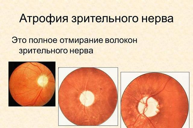 Отмирание волокон зрительного нерва (атрофия зрительного нерва)