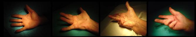Контрактура Дюпюитрена суть особенности способы лечения