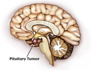 Тубулярно папиллярная аденома