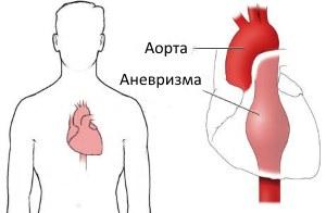 Расслоение аорты симптомы причины